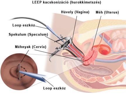 mell papilloma műtét időtartama prosztatarákos kocka