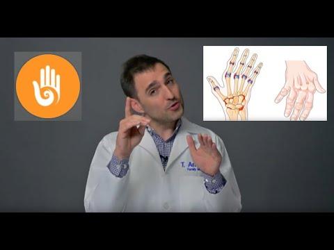kéz osteoarthritis kezelése)