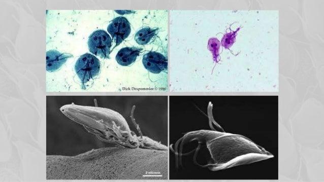 humán papilloma vírus hogyan kell kezelni a véleményeket hiv és nyelőcsőrák