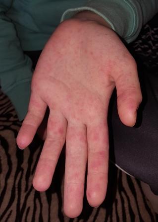 Vírusos szemölcs okai és kezelése   BENU Gyógyszertárak