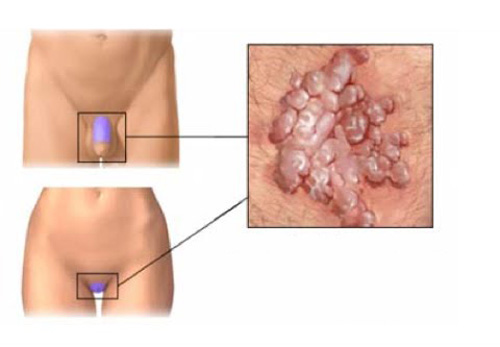 condyloma szindrómák)