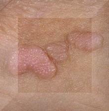 hpv erkeklerde tedavisi papillómák a hangdobozon