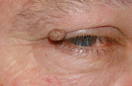 emberi papillomavírus a kezében hogy a test parazitákat bocsát ki a tablettákból