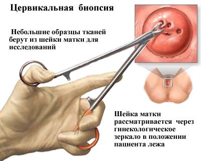 az emberi papilloma vakcina kora
