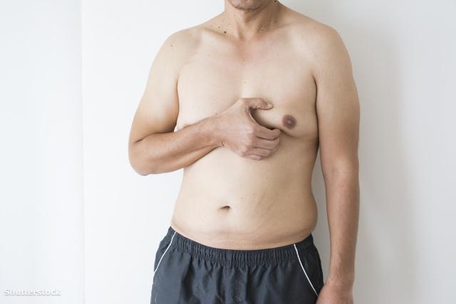 emlőrák férfiak tünetei)