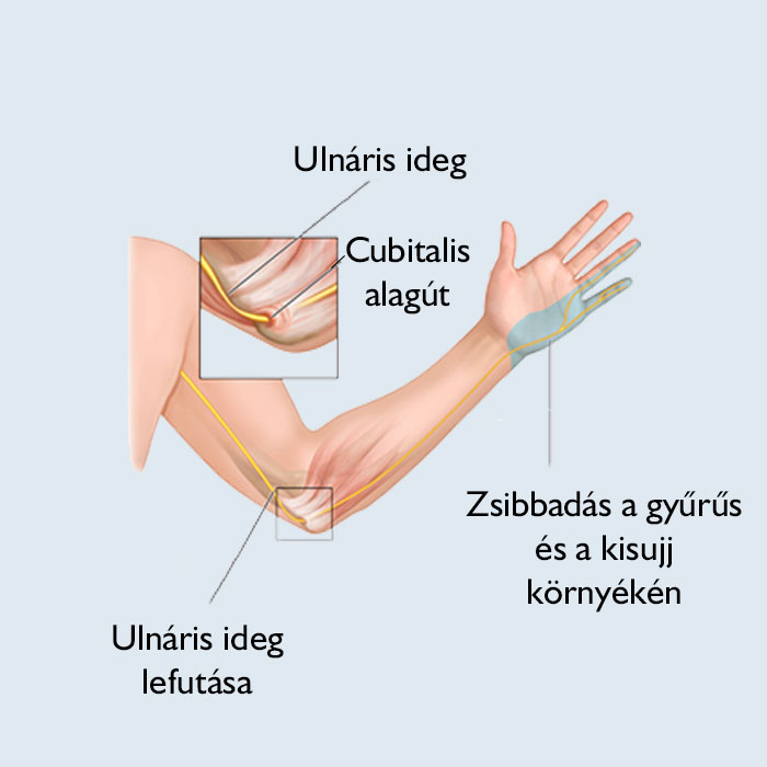 Raynaud-szindróma tünetei és kezelése