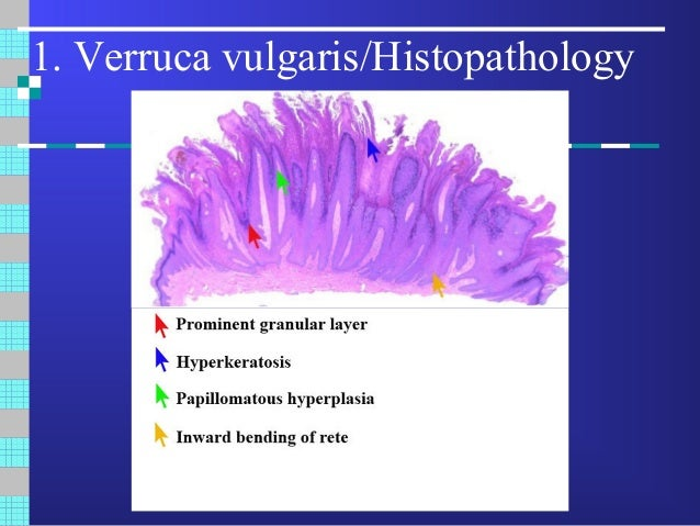 humán papillomavírus verruca vulgaris légcső daganatok papilloma