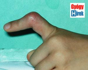 az ujjak között rohad)