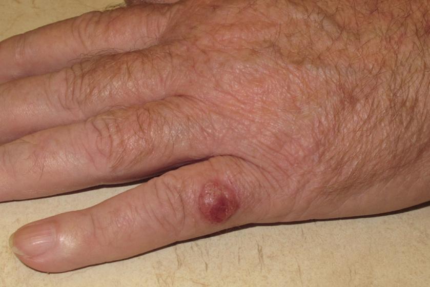 Bőrrákok (nem melanoma) tünetei és kezelése