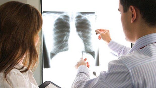 A HPV a tüdőrákos betegek nagyobb részében is jelen van