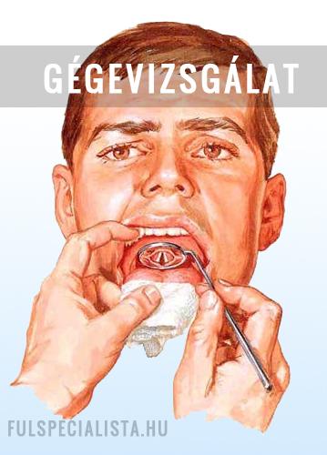 papillomavírus vakcina beadása