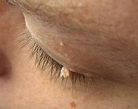 a papilloma vírus nem shqip fergektolt, mint kezelni