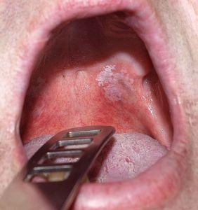 A szájban lévő papilloma fáj)