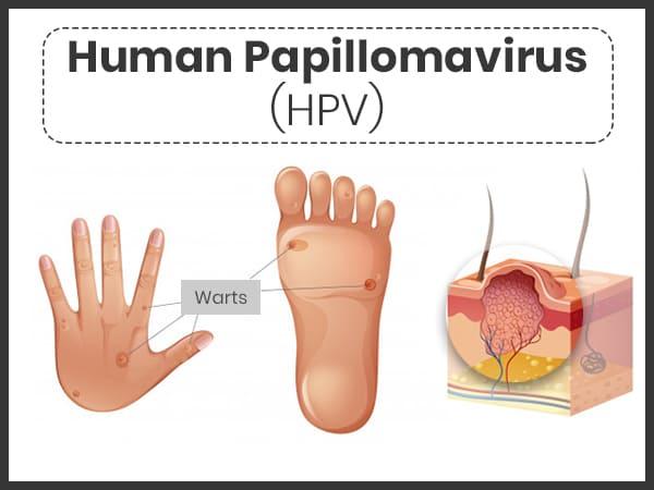 humán papilloma vírus kad n a genitális szemölcsök egy típus
