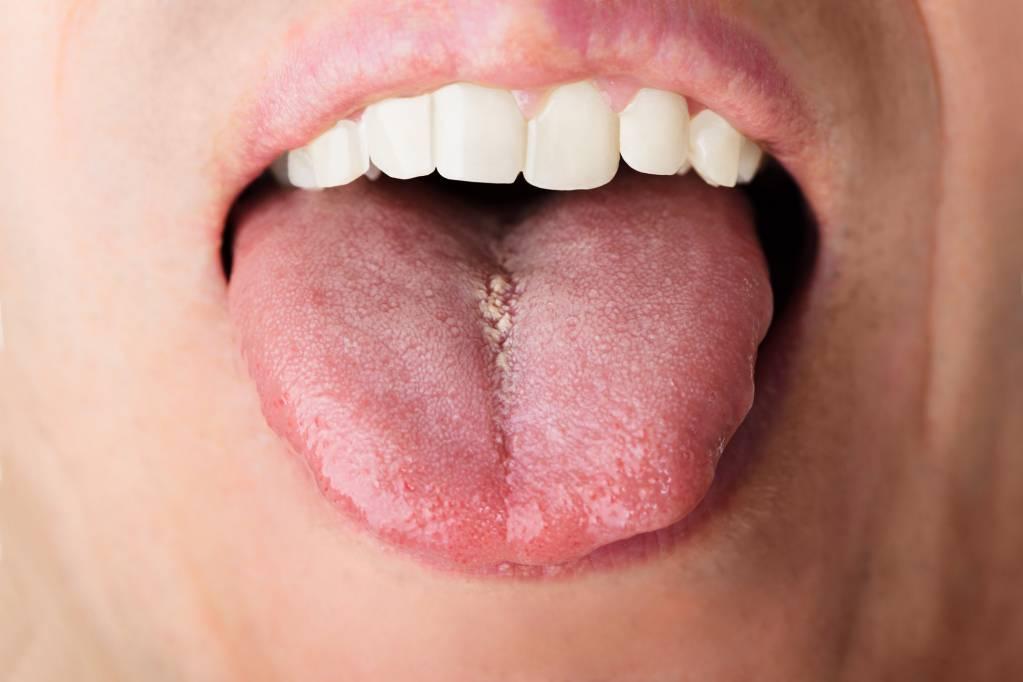 hpv warzen mund papillomavírus és fájdalom a közösülés során