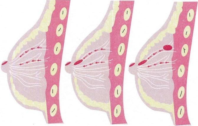 intraductalis papilloma ihc