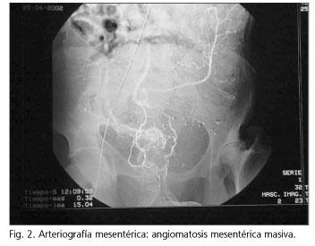 ami acanthosis papillomatosisot jelent)
