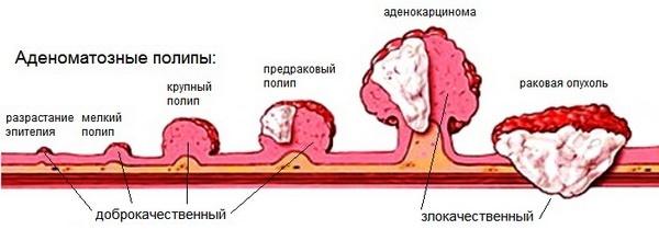 jóindulatú rák vakond szemhéjak wow hogyan menekülni