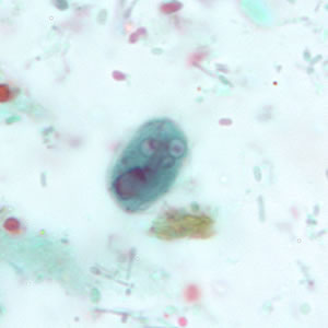 Giardia duodenalis life cycle, Giardiasis life cycle