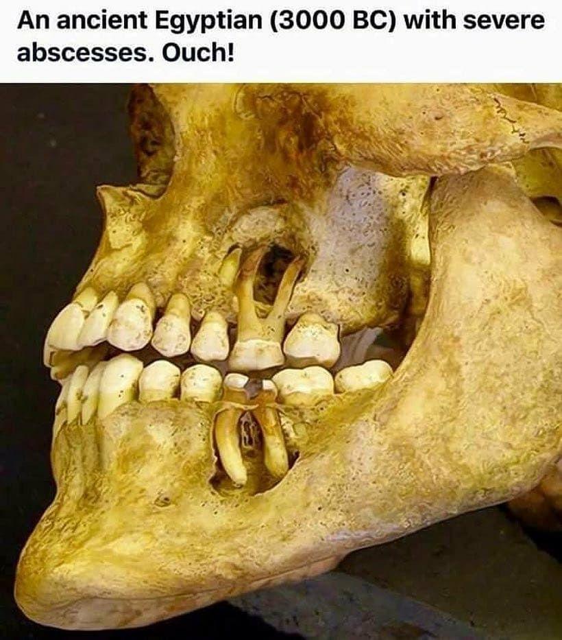 a papilloma meghatározása a fogászatban)