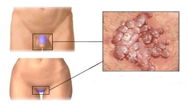 Vulva condyloma Humán papillómavírus fertőzés (nemi szervi)