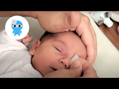 Sárga köröm szindróma, Féregtabletták szoptató anyák számára
