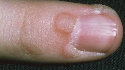 bőr papillómák okai és kezelése