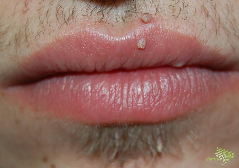 szemölcsök a száj kezelésében)