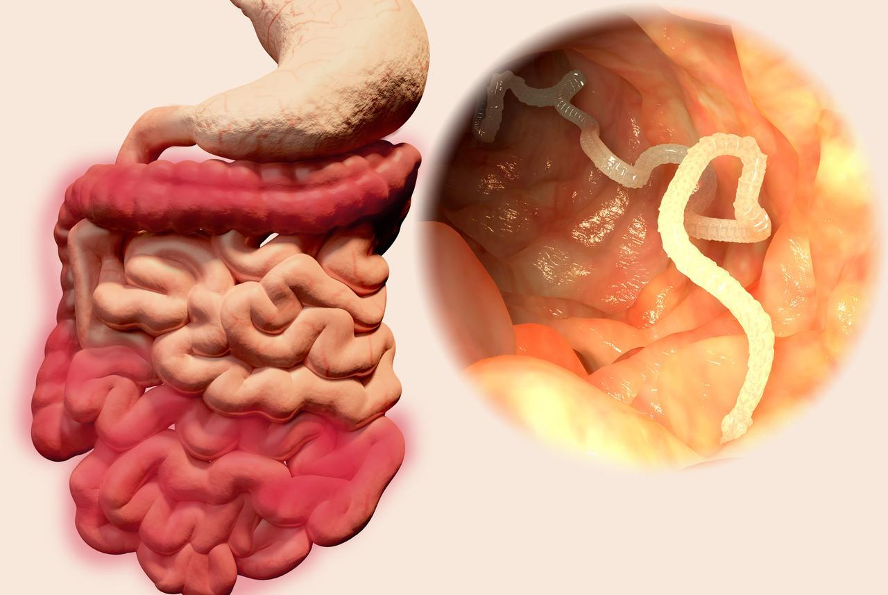 parazita jetra)