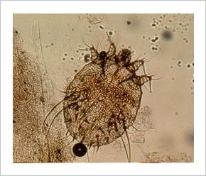 paraziták és yeti tünetek