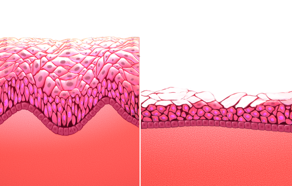 Giardia simptome adulti, Hpv szemolcs kepekben