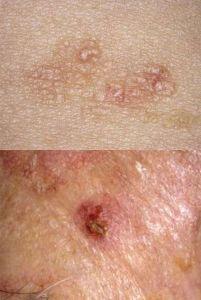 bőrrák krém