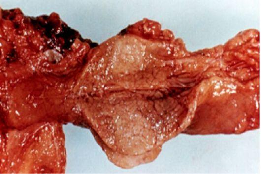 Sárgás szemfehérje: a hasnyálmirigyrák tünete is lehet