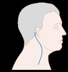 hpv pozitív oropharyngealis rák amely segít a férgek ellen