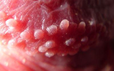 Fordyce granulátum vagy condyloma