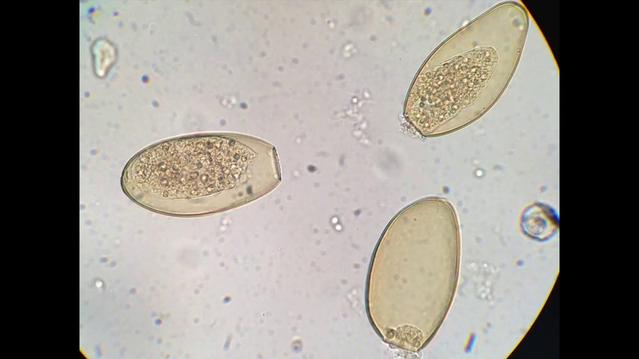 a fascioliasis patomorfológiája)