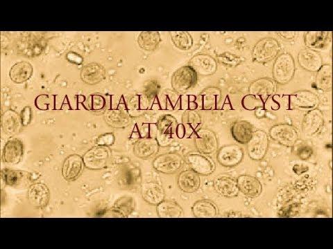 Giardia cysta - Giardiasis tünetei és kezelése - HáziPatika