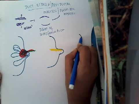 Intraduktális papilloma