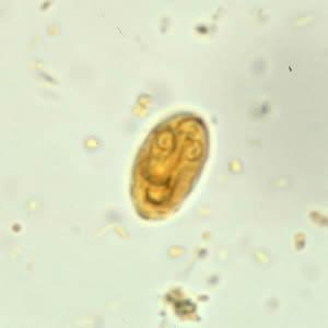 a giardiasis életciklusa cdc)