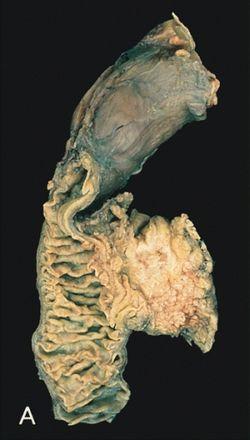 hasnyálmirigyrák daganat mérete)