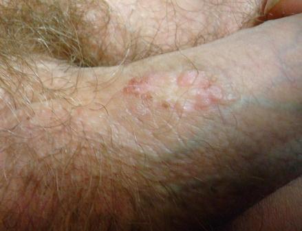 condyloma seborrhea)