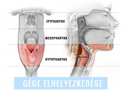 jóindulatú daganatos gége papillomatosis