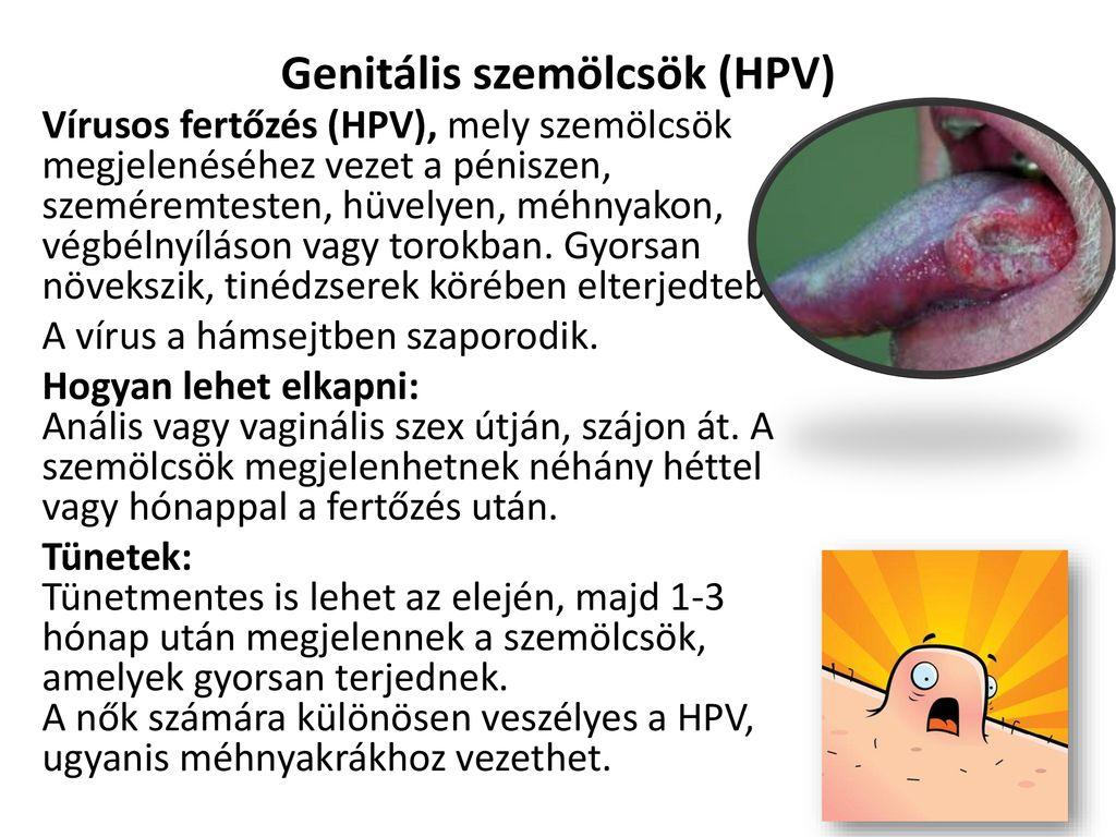 genitális szemölcsök a végbélnyíláson