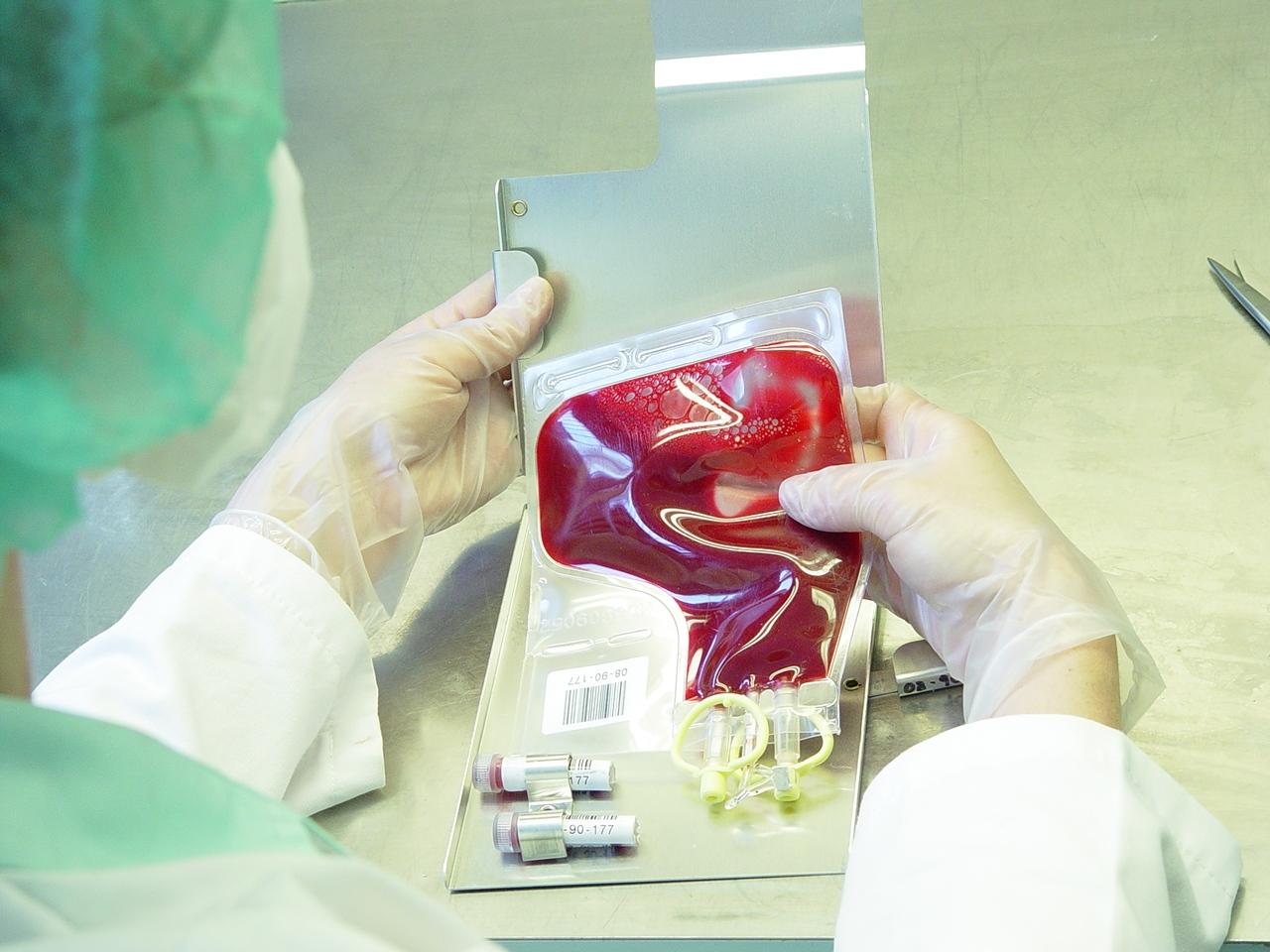 Vérszegénység is veszélyezteti a daganatos beteget