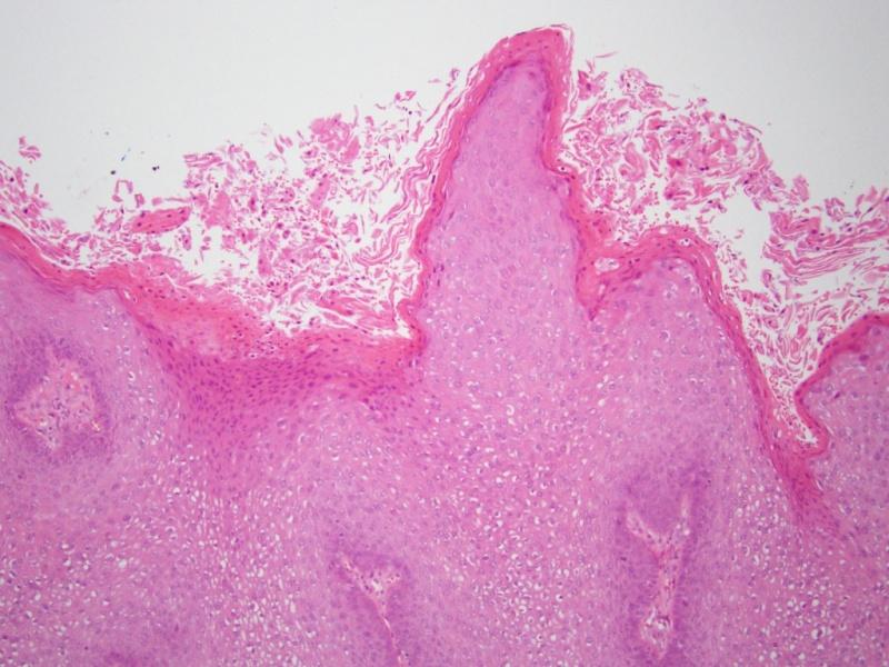 Inkubációs periódus a genitális szemölcsöknél