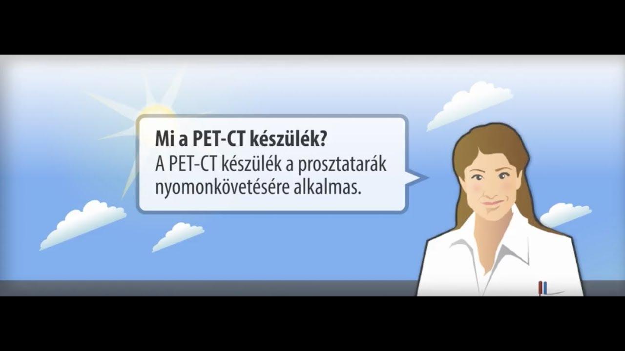 prosztatarák is)