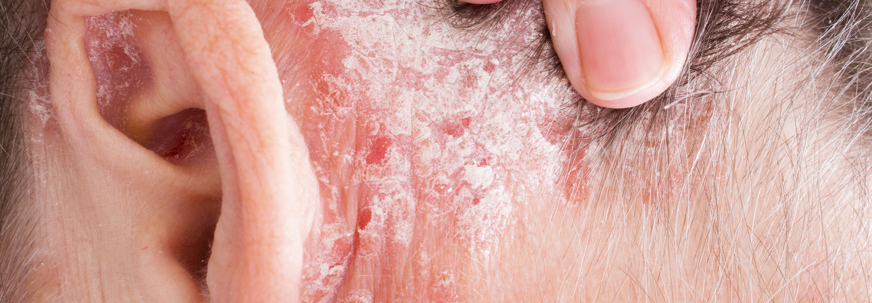 övsömör és papillomavírus