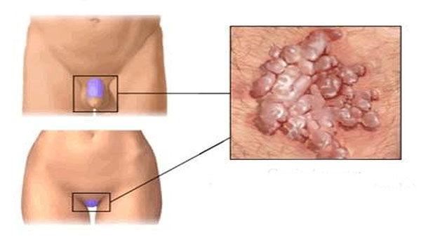 condyloma a bőr kezelésénél)
