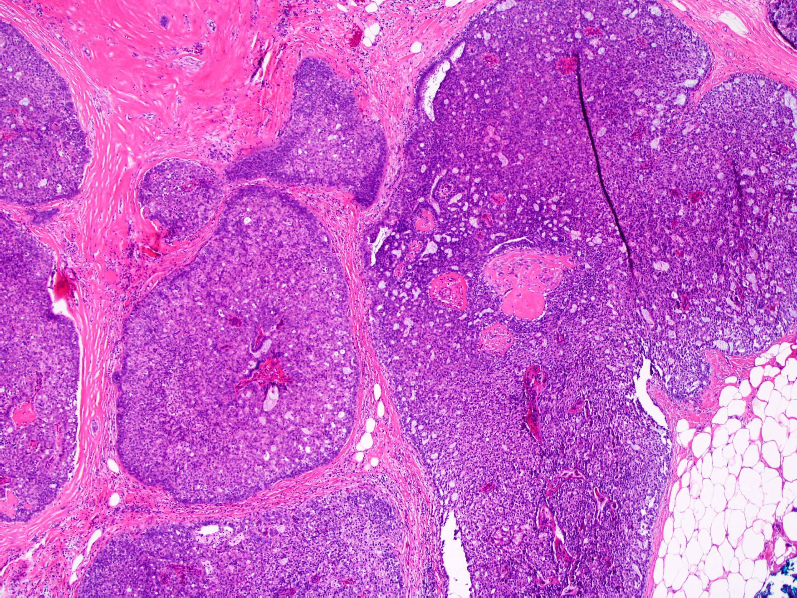 ductalis papilloma patológia vázlata