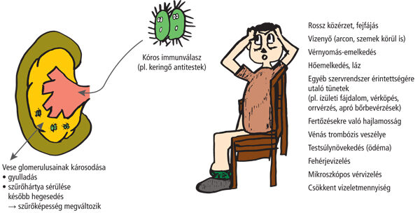 tünetek és gyógyszerek a veseférgek ellen